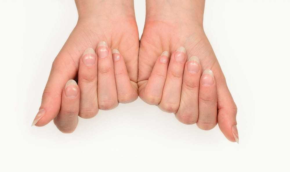 Nail Discoloration Causes, Symptoms, Treatments & Prevention. Get Flawless Healthy Nails!