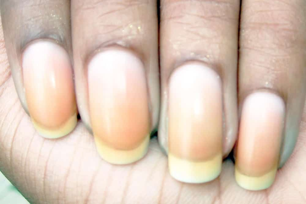 How To Treat Discolored Nails - Best Nail ImageBrain.Co