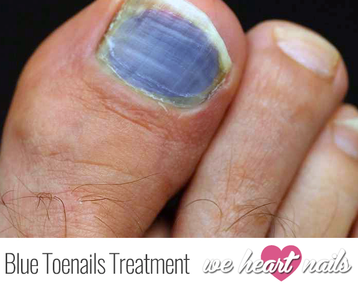 What is the Cause of Blue Toenails? Discover How to Treat Blue Toenails Successfully!