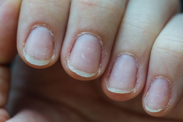 Why Do I Have Brittle Nails? What Causes Brittle Nails and How To ...