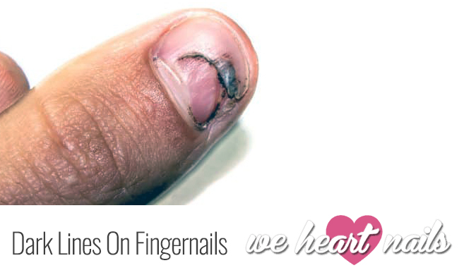 Dark Lines On Fingernails