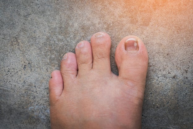 What Causes Toenail Discoloration We Heart Nails