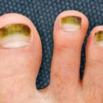 green-toenails