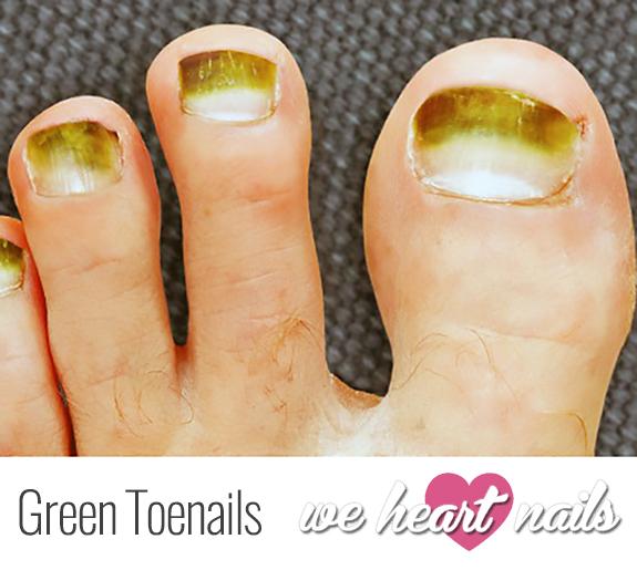 Green Toenails
