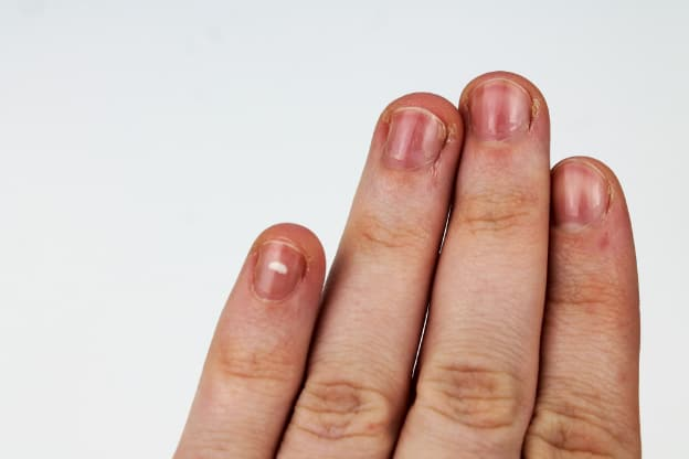 Red Streaks in the Nail