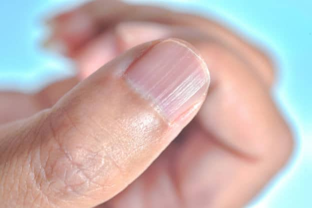 Why Do I Have Vertical Lines On My Nails? | We Heart Nails