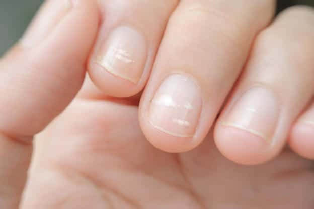 Do I Have White Lines On My Nails?