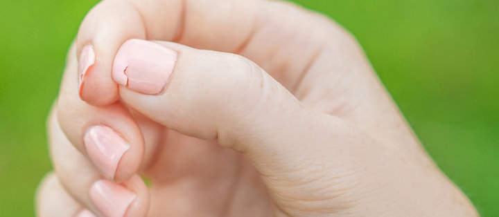Nails Catching on Everything? How to Fix Broken Nails
