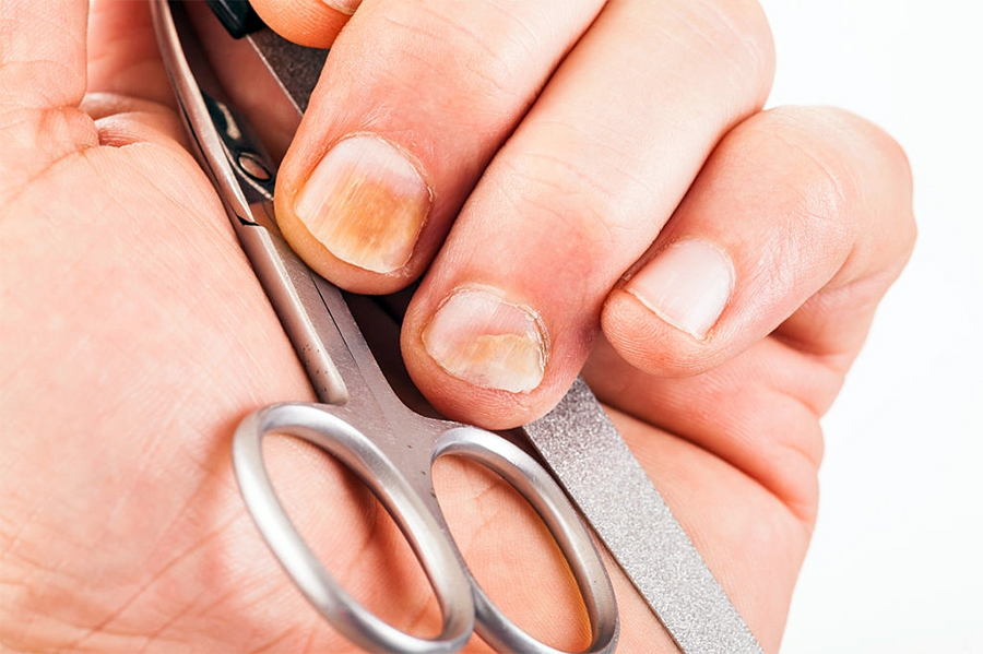 Worried About Holes In Your Nails? I Can Help